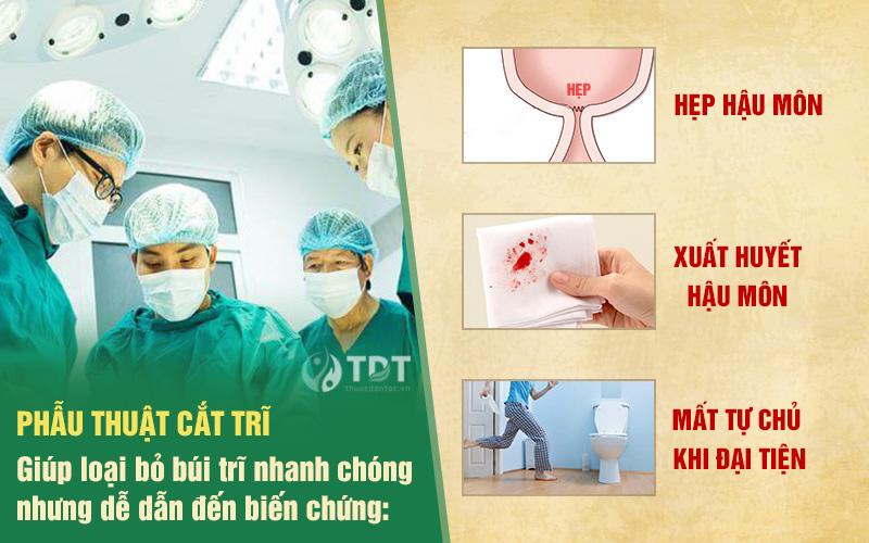 Biến chứng của phẫu thuật cắt trĩ
