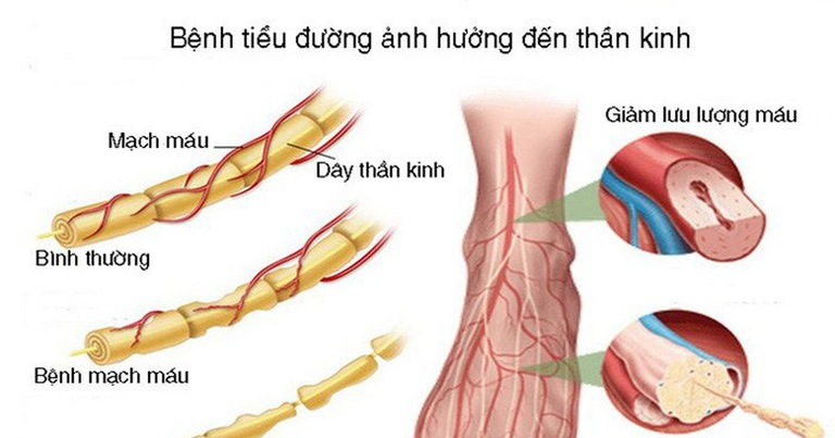 Biến chứng bệnh tiểu đường có thể tác động đến thần kinh và gây hoại tử chân tay