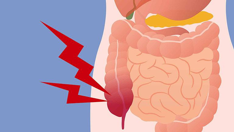 các loại bệnh về đại tràng