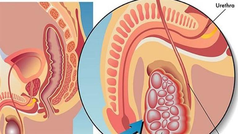 triệu chứng các bệnh về tinh hoàn