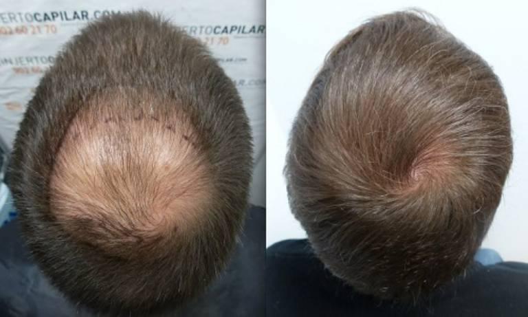 Làm thế nào để mọc tóc nhanh không chỉ là thắc của chị em mà còn là vấn đề nhức nhối của cánh mày râu