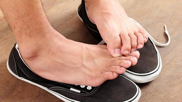 cách trị mồ hôi chân