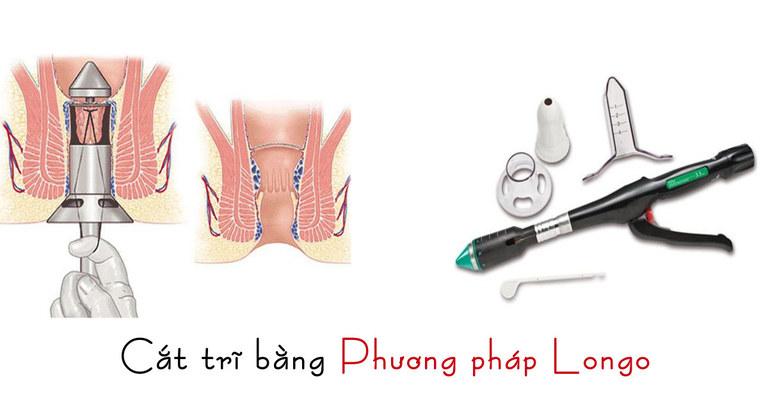 Phương pháp Longo đang được rất nhiều cơ sở y tế sử dụng cắt trĩ hiện nay