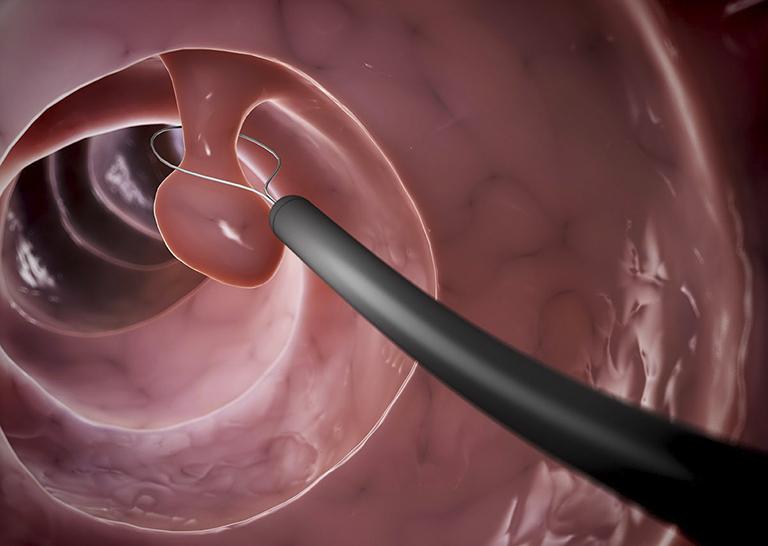 Cắt bỏ polyp đại tràng bằng nội soi là phương pháp được chỉ định sử dụng ở hầu hết các bệnh viện