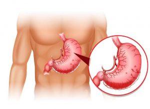 Chảy máu dạ dày có chữa được không là thắc mắc chung của nhiều người