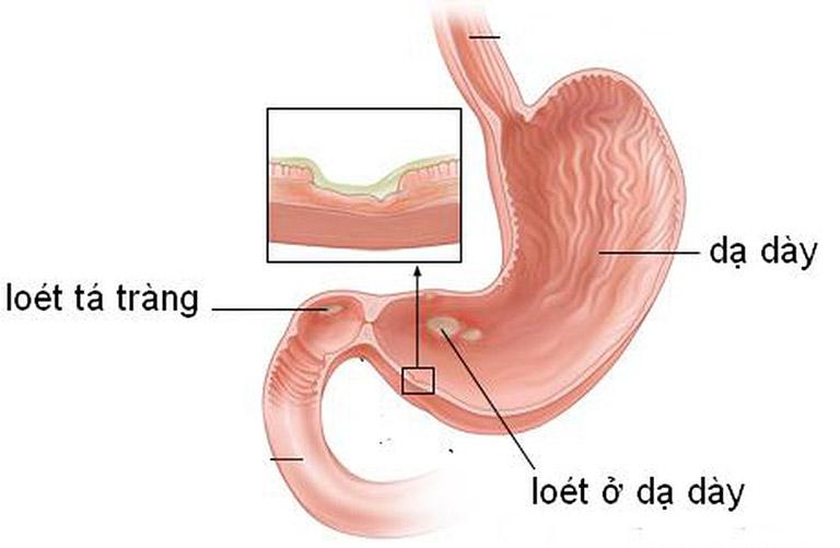 đau bụng âm ỉ kéo dài