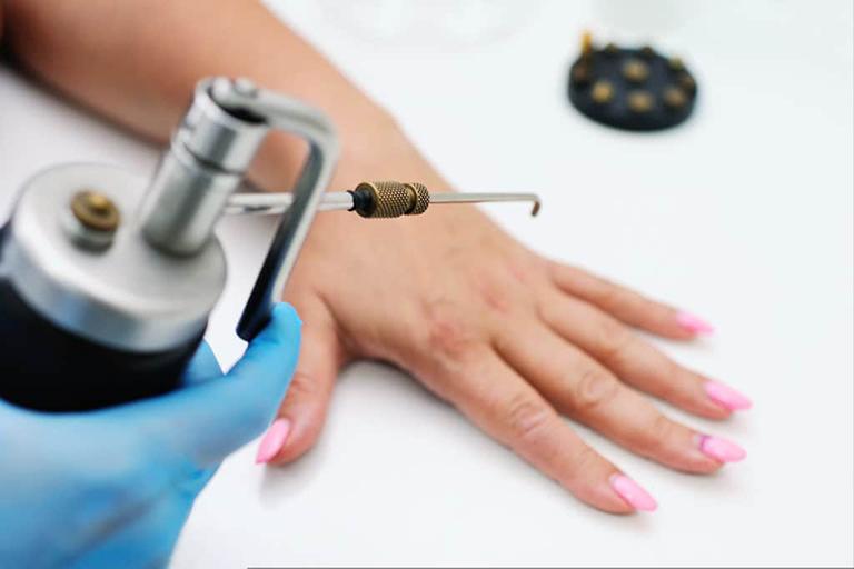 Điều trị mụn cóc bằng đốt laser là phương pháp tiên tiến, có khả năng loại bỏ mụn nhanh chóng