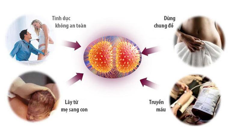 Các con đường lây nhiễm của bệnh lậu cầu