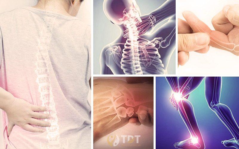 Gai xương khiến bệnh nhân đau đớn và biến chứng nguy hiểm