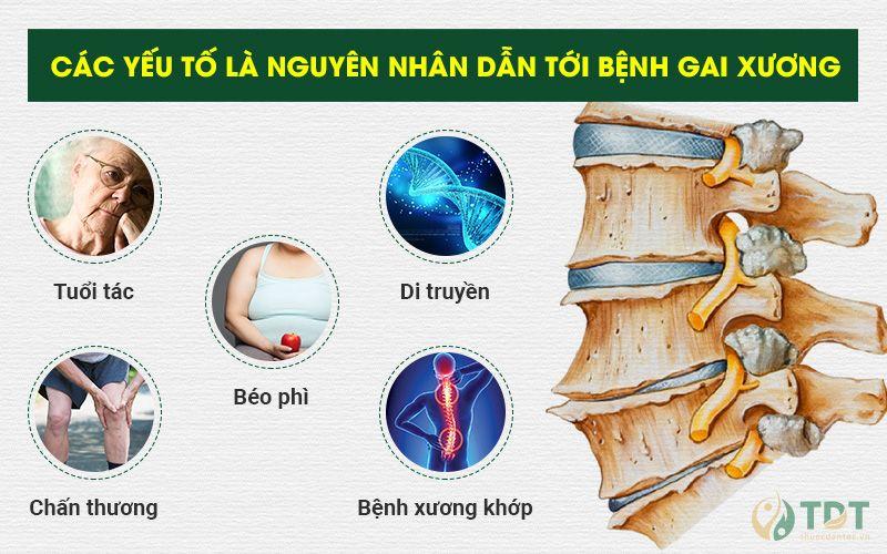 Nguyên nhân dẫn tới bệnh gai xương
