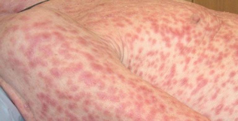 Các nốt săn giang mai mọc khắp cơ thể người bệnh