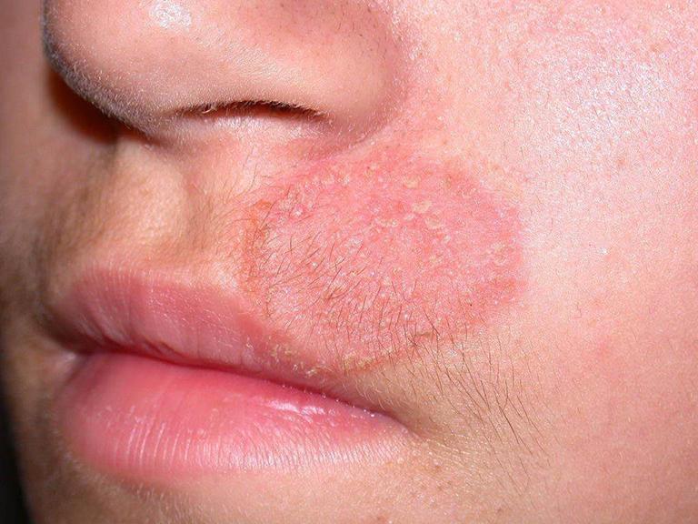 Sử dụng hắc muối để điều trị hắc lào chỉ mang lại hiệu quả đối với những trường hợp bệnh nhẹ