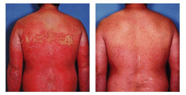 Bệnh vảy nến thể đỏ da toàn thân