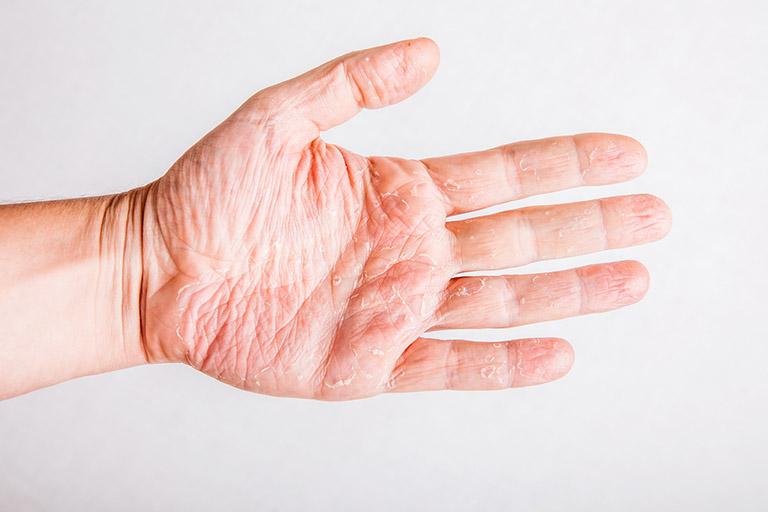 hình ảnh của bệnh vảy nến