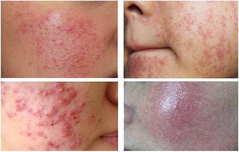 Hậu quả khi lạm dụng kem trị viêm nang lông