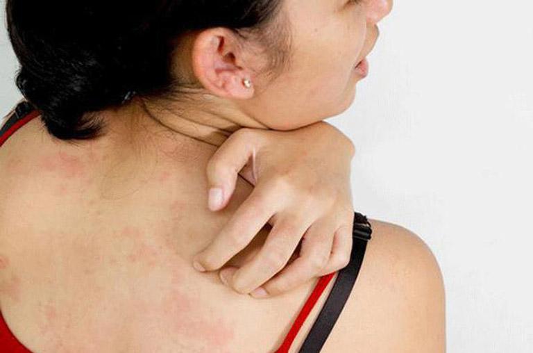 Triệu chứng lang ben ở lưng gây ngứa