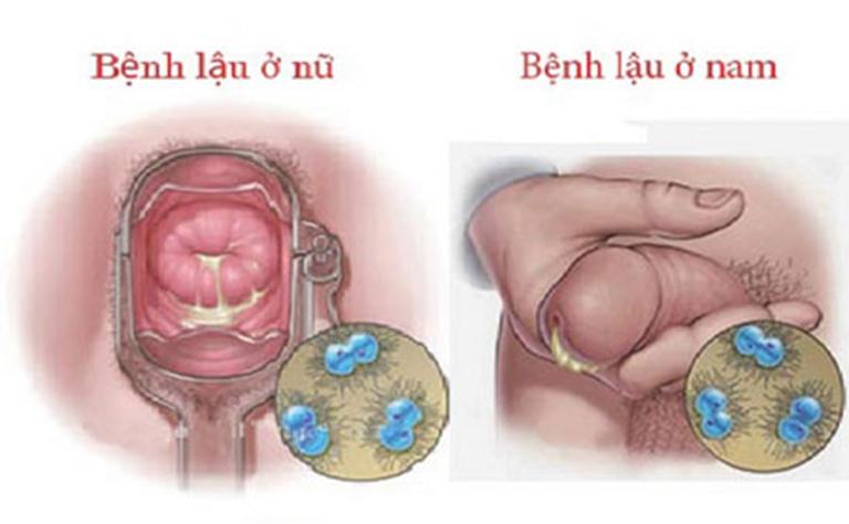 Biểu hiện bệnh lậu ở nam và nữ