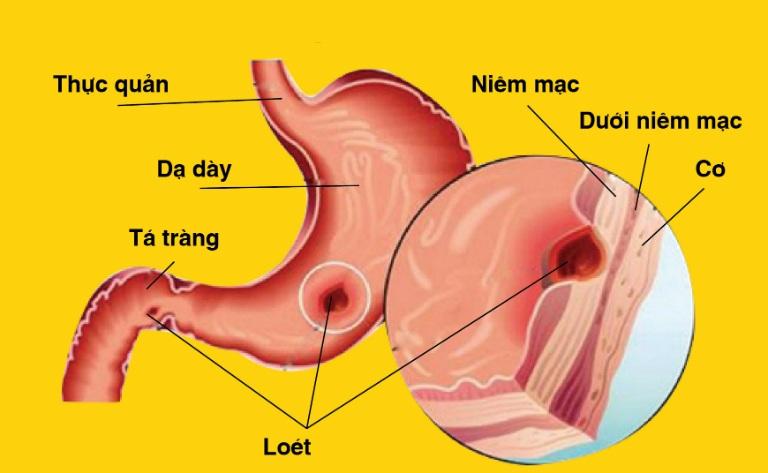 Viêm loét dạ dày là tình trạng niêm mạc dạ dày bị tổn thương dẫn đến loét, viêm.