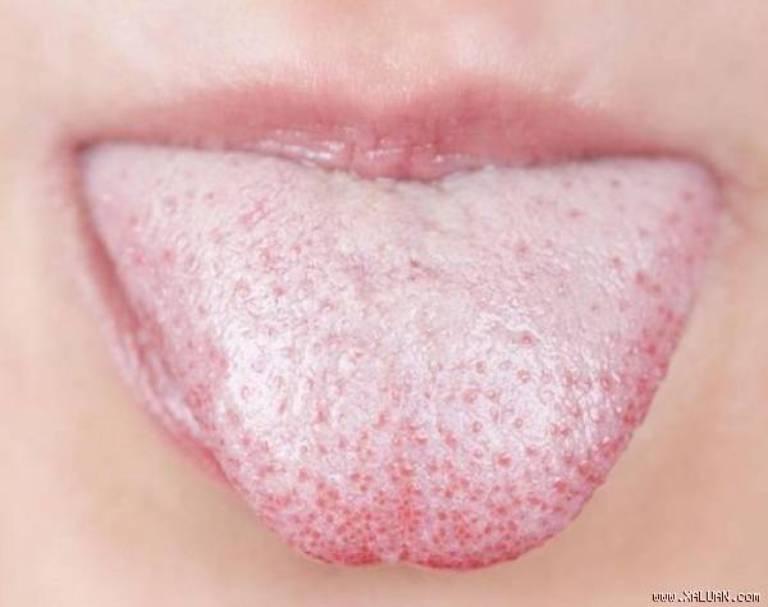 Có nhiều nguyên nhân gây ra hiện tượng lưỡi trắng hôi miệng