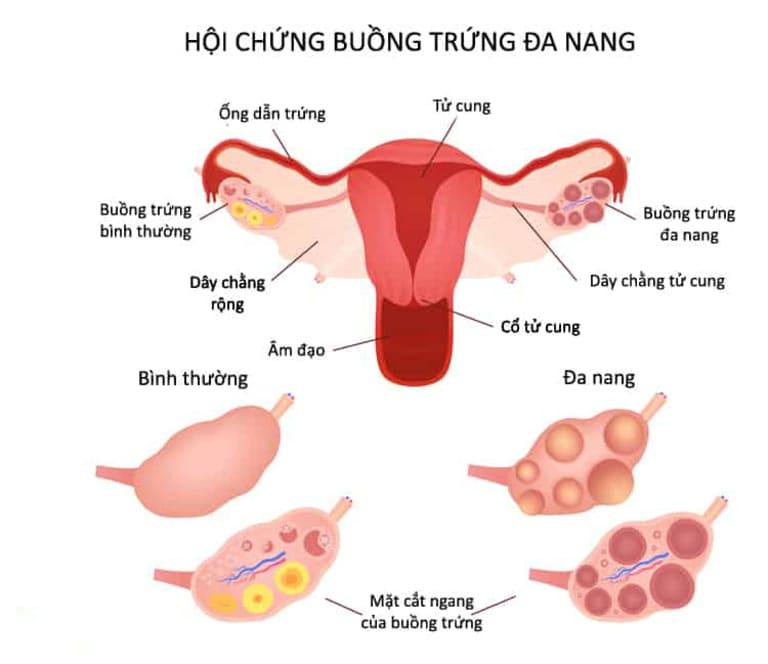 Hội chứng đa nang buồng trứng là một trong những nguyên nhân gây mất kinh
