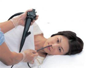 Nội soi dạ dày bằng đường mũi là phương pháp đưa ống nội soi đi qua đường mũi
