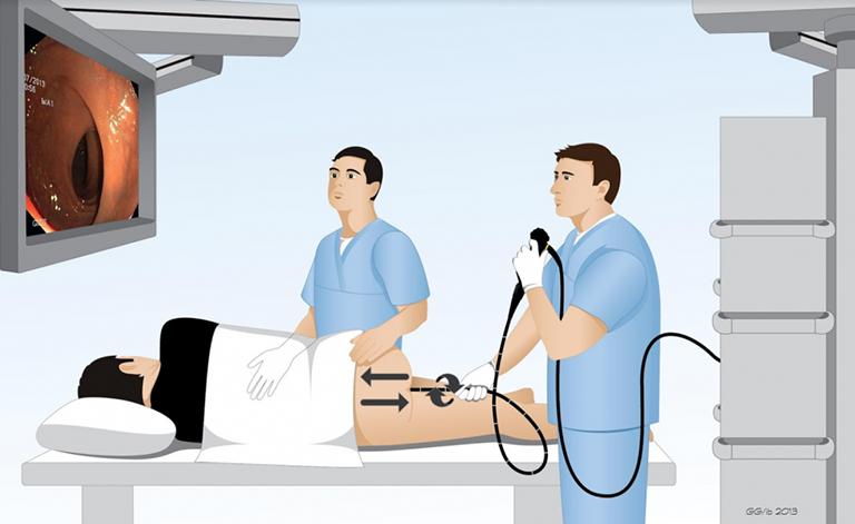 Nội soi đại tràng llà phương pháp tốt nhất giúp bác sĩ kiểm tra và phát hiện polyp đại tràng