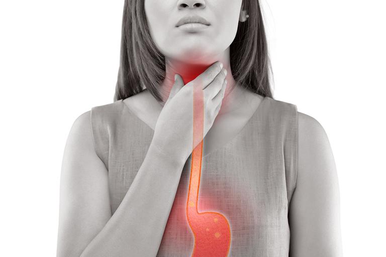 Trào ngược dạ dày là nguyên nhân phổ biến dẫn đến tình trạng ợ chua