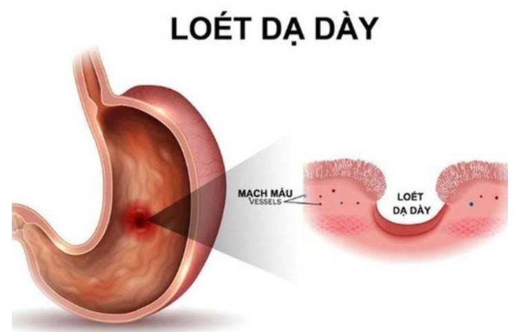 Viêm loét dạ dày tá tràng là một chứng bệnh điển hình của đau dạ dày