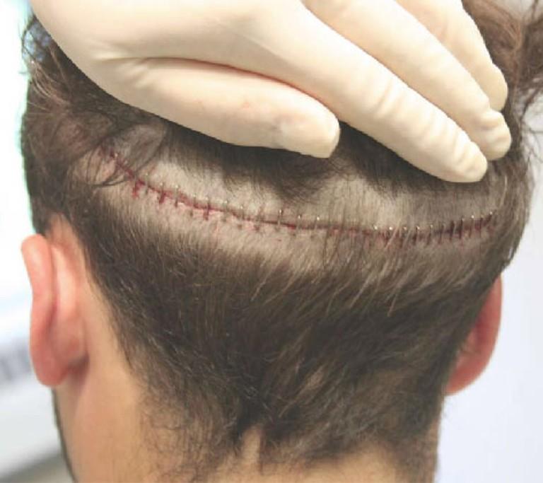 Cắt ghép các nang chân lông theo mảng có thể để lại sẹo