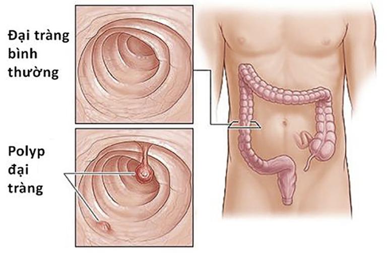 Polyp đại tràng là căn bệnh thường gặp ở những người độ tuổi ngoài 50