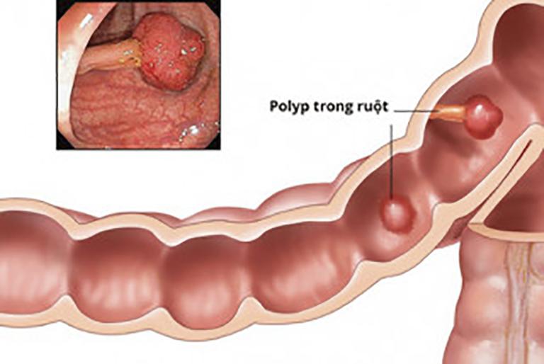 Polyp trực tràng là sự hình thành các khối u nhỏ bên trong niêm mạc ruột già gây ảnh hưởng đến tiêu hoá