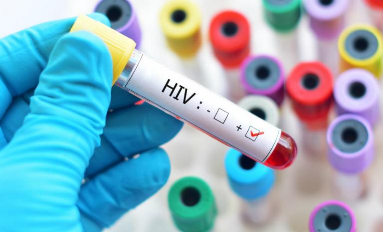 Quan hệ không dùng bao cao su có thể khiến bạn bị nhiễm virus HIV từ bạn tình.