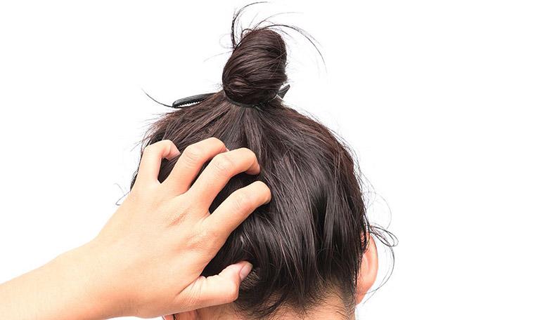 rụng tóc nhiều là bệnh gì