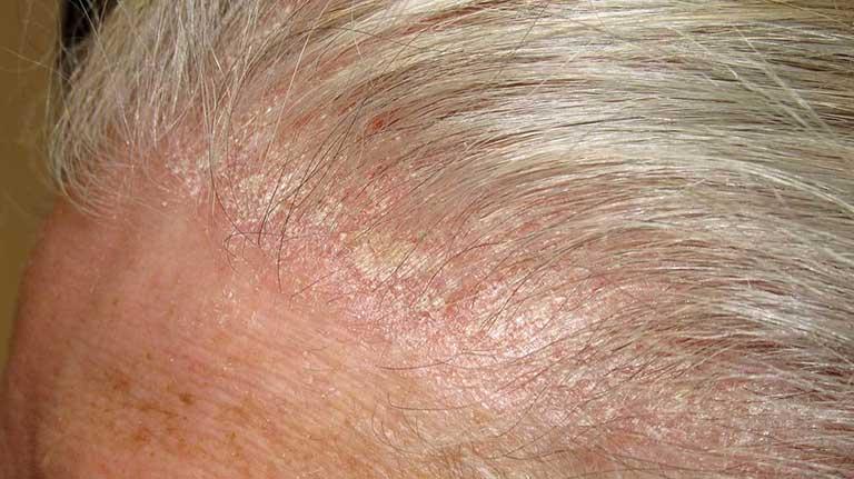 nguyên nhân rụng tóc ở nữ