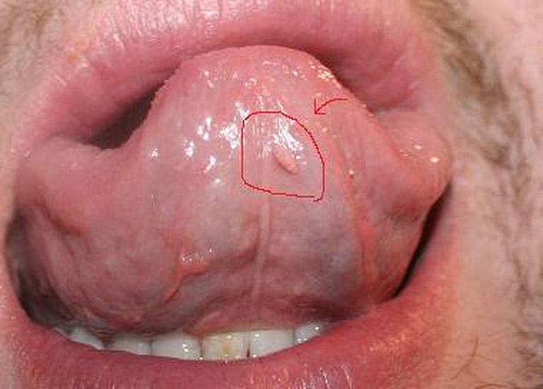 bệnh sùi mào gà ở lưỡi