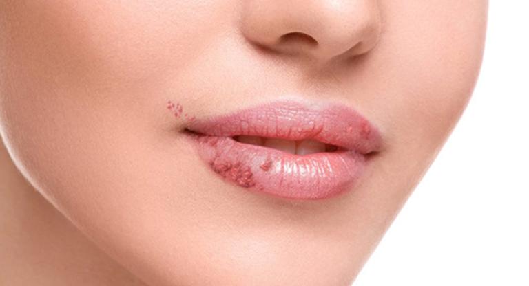Sùi mào gà ở miệng là căn bệnh xã hội nguy hiểm có khả năng lây nhiễm rất cao