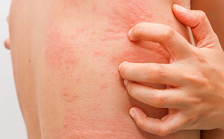 thuốc tomax chữa bệnh gì