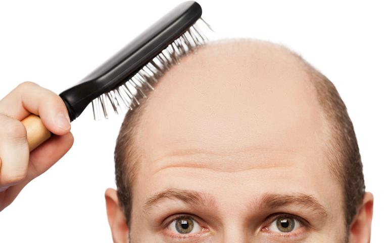 Rụng tóc quá nhiều (trên 100 sợi/ngày) là dấu hiệu cho biết sức khỏe của bạn đang gặp vấn đề.