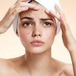 Dị ứng da mặt do nhiều nguyên nhân gây ra có thể được điều trị bằng thuốc hoặc không
