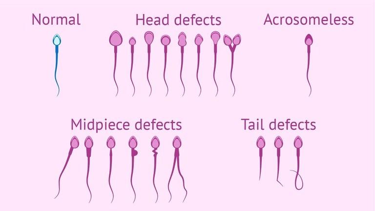 Các loại dị dạng tinh trùng