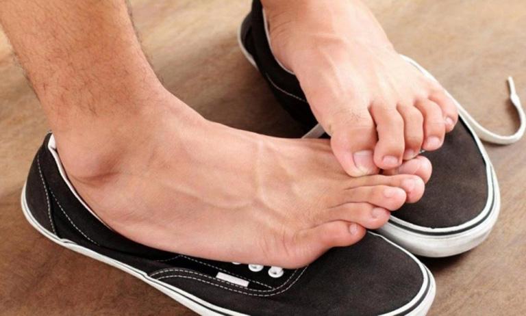 trị hôi chân khi đi giày