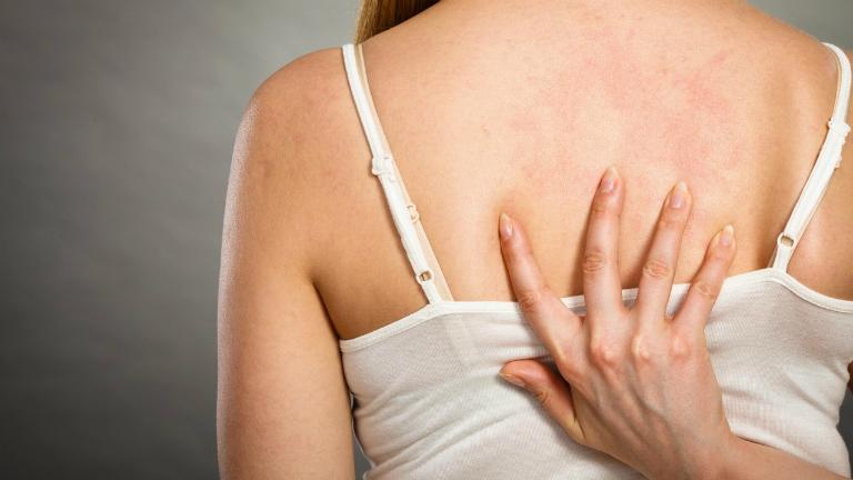 Viêm nang lông không phải là căn bệnh nguy hiểm và hoàn toàn có thể điều trị được.