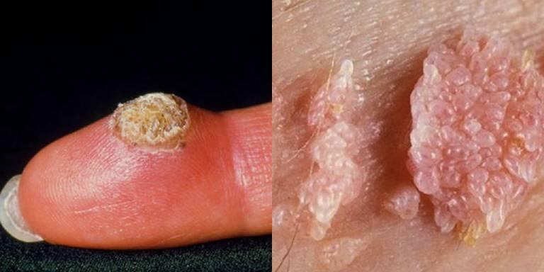 Nhận biết virus hpv thông qua triệu chứng trên da