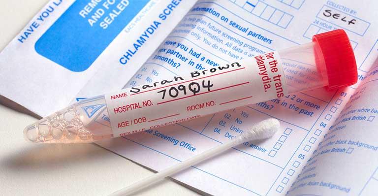 bệnh lậu cần xét nghiệm gì