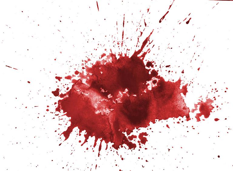 xuất huyết hang vị dạ dày