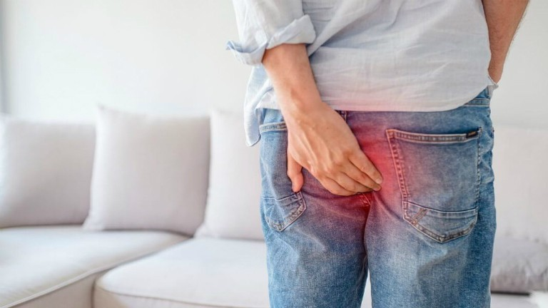 Trĩ là tình trạng tĩnh mạch ở hậu môn và trực tràng bị ứ máu, phình giãn, dẫn đến sưng và đau.