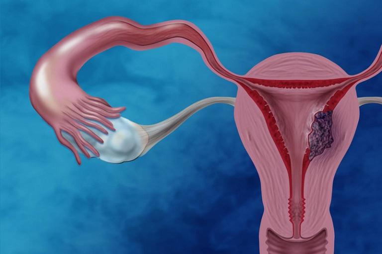 bệnh u nang buồng trứng là gì