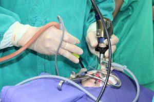Phương pháp Coblator tiên tiến nhất về mặt kỹ thuật và có thời gian phục hồi sau phẫu thuật ngắn nhất