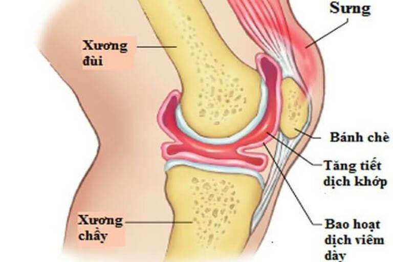 Cấu tạo và vị trí của khớp gối khiến bộ phận này dễ bị viêm nhiễm