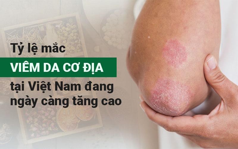 Điều trị viêm da cơ địa tại Trung tâm Thuốc Dân Tộc